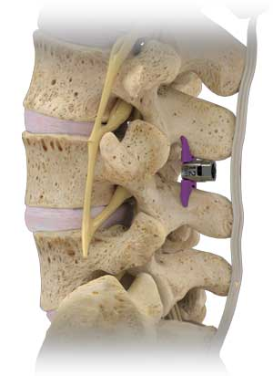 spine vertiflex diagram